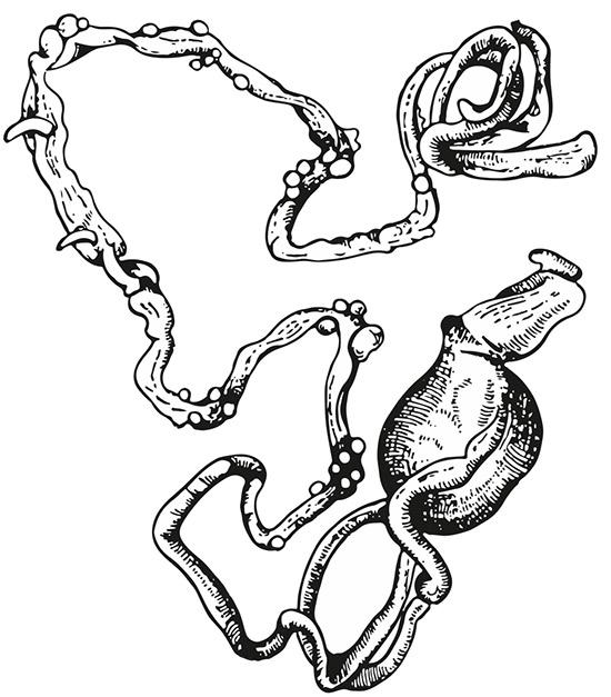 Zmiany wjelicie kaczki wywołane przezFilicollis anatis